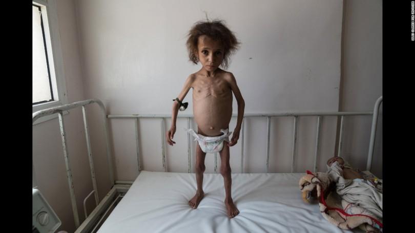 170619132624-02-yemen-civil-war-malnutrition-super-169